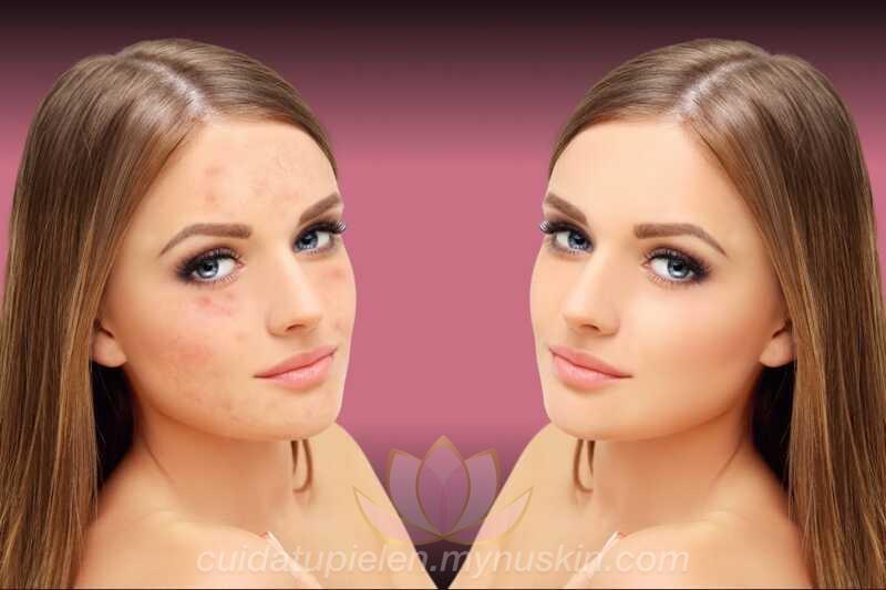 tratamiento-contra-el-acné