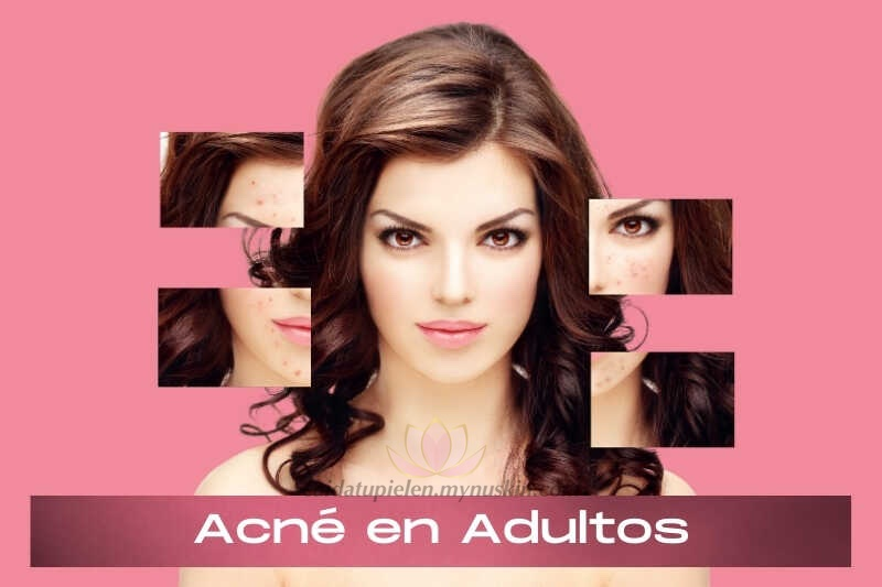 acne-en-adultos-causas