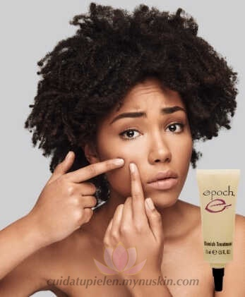 consejos-eliminar-granos-y-acné